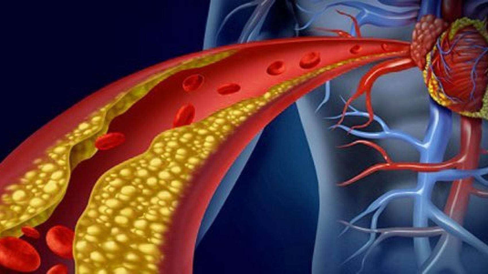 microbiota e colesterolo
